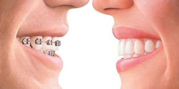 Brackets: La revolución de la ortodoncia invisible