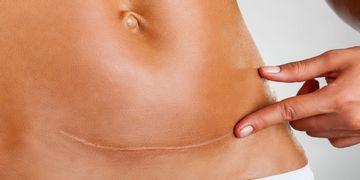 Cómo curar la cicatriz después de una intervención quirúrgica