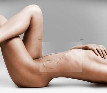 Liposucción: los cuidados postoperatorios que aseguran los mejores resultados