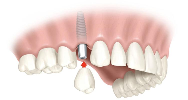 Verdades y mitos de los implantes dentales