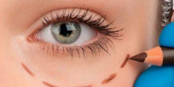 Blefaroplastia evolutiva, la técnica que mejora la mirada