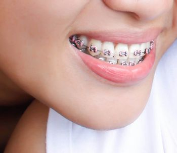 Un incorrecto tratamiento de brackets puede dañar nuestros dientes