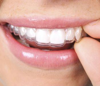 Invisalign y la ortodoncia removible invisible