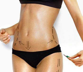 Lipotransferencia la cirugía que aumenta tus curvas