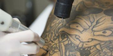 Elimina un tatuaje indeseado con láser Q-switched