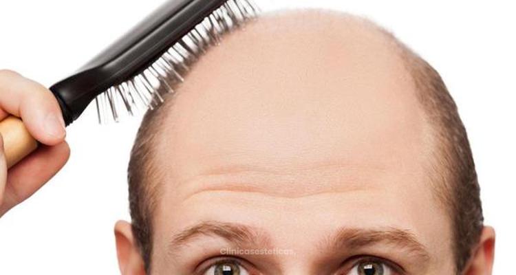 ¿Qué tipo de alopecia tienes?