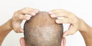 Trasplante capilar, la solución definitiva a la calvicie