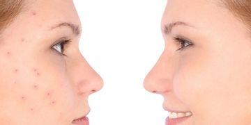 Elimina los signos del acné con el PRX-T33