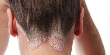 Las principales causas de la psoriasis