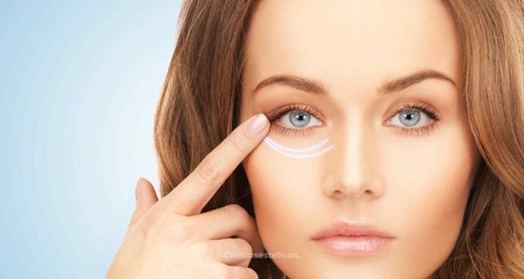Los 3 mejores tratamientos para eliminar las ojeras
