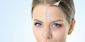 Conoce los 5 láseres para el rejuvenecimiento facial