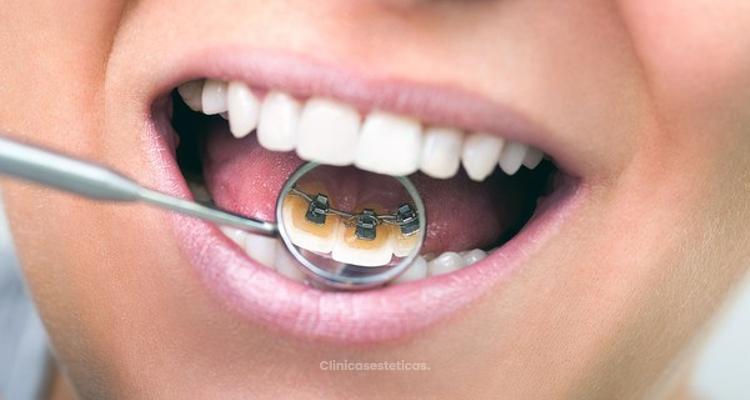7 Respuestas sobre ortodoncia lingual