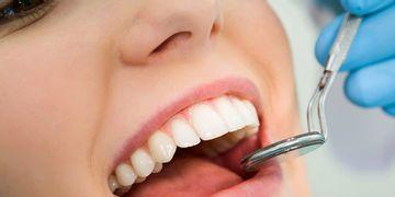 Los 5 pasos de una endodoncia
