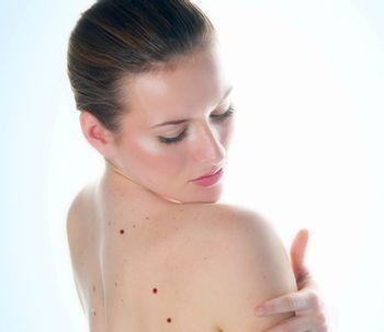 ¿Por qué aparecen los lunares rojos de la piel?