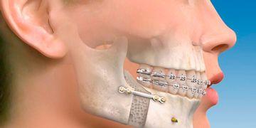 Todos los avances de la cirugía maxilofacial