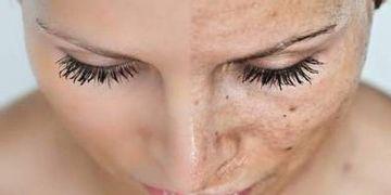 Melanocitos, los responsables de las manchas de la piel