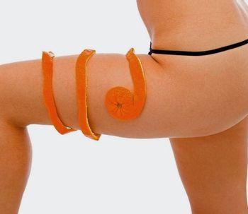 Vacumterapia, la solución a la piel naranja