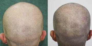 Micropigmentación capilar, una efectiva solución para la calvicie