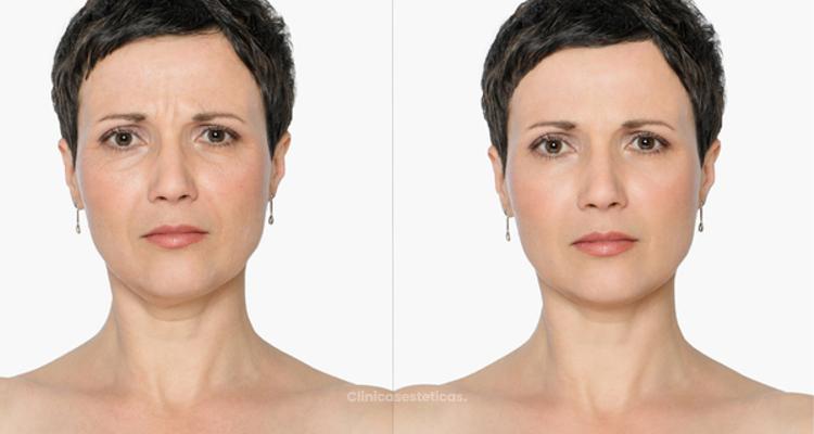 ¿Has evaluado la opción de usar bótox para retrasar la aparición de arrugas? - Emol