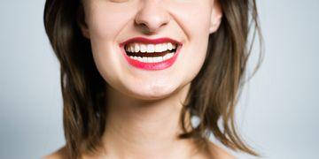 Los implantes dentales y la regeneración ósea