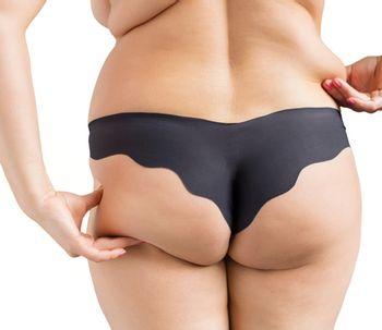 Olvídate de la grasa localizada con el método Criolipólisis