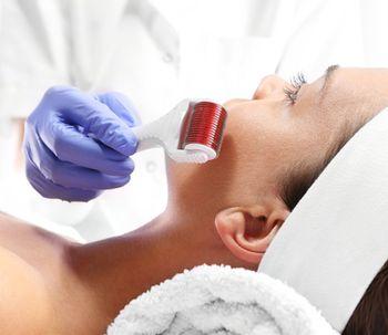Microneedling: nueva terapia para estimulación cutánea