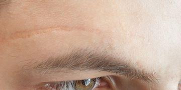 Cicatrices: cómo mejorar su aspecto