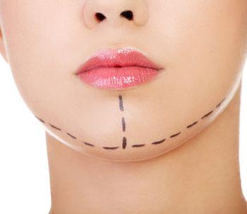 La mentoplastia, cirugía de moda en EE.UU.