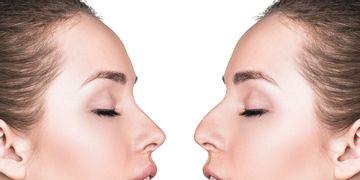 Septoplastia: una solución funcional y estética