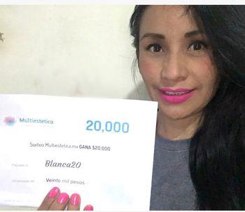 Conoce a Blanca20 la ganadora del sorteo de Clinicasesteticas
