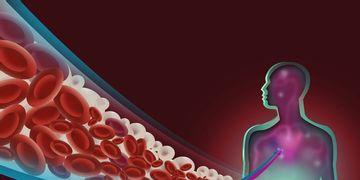 ¡Sin cirugías!: tres tratamientos para eliminar grasa del organismo