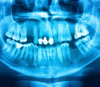 Los materiales a usar a la hora de una reconstrucción dental