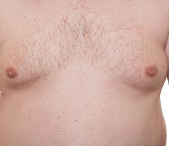 Ginecomastia: la solución al exceso de pecho masculino