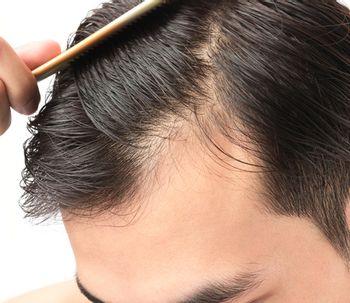¿A qué edad puedo realizarme un trasplante de pelo?