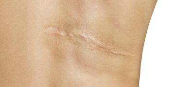 Células madres o plasma: dos exitosos tratamientos para tratar las cicatrices