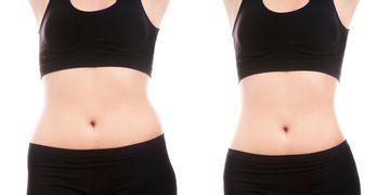 Lipólisis láser una excelente alternativa a la liposucción