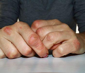 Psoriasis: tipos y síntomas