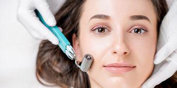 Microneedling: revolucionario tratamiento para piel y aumento capilar