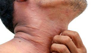 Dermatitis: causas, síntomas y tratamientos