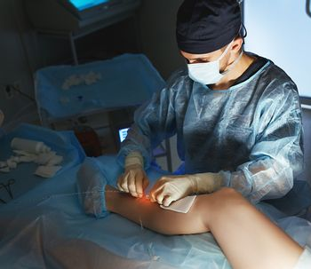 Tratamiento de varices a través de termoablación con radiofrecuencia