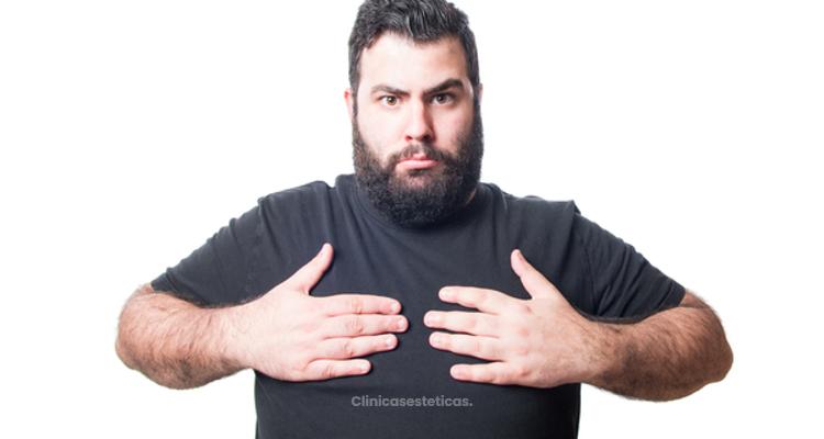 Clasificación y grados  de la  ginecomastia