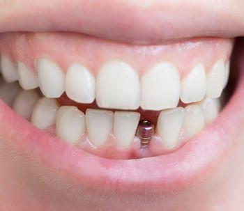 Consigue una sonrisa sana y linda con los implantes dentales de carga inmediata