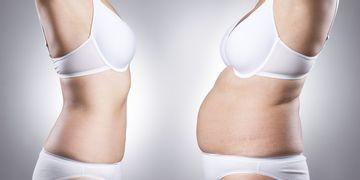 Los seis tipos de abdominoplastía: ¿cuál será la tuya?