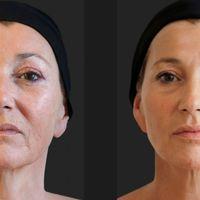 Regeneración y Bioestimulación Facial