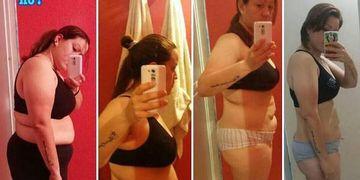 Descubre la lipoplastia y dile adios a la grasa