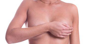 Aumento mamario: Lo que deberías saber el postoperatorio