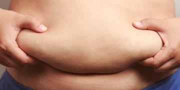 Cirugía bariátrica y buena nutrición: una salida a la diabetes