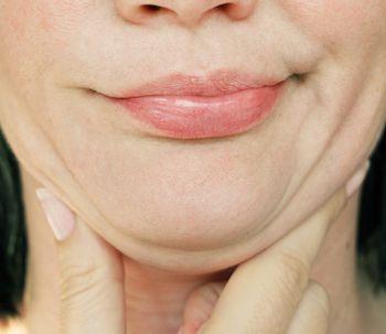 Belkyra: un tratamiento rápido y eficaz para eliminar la papada