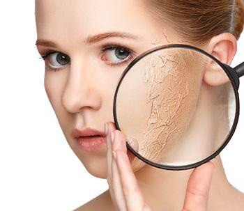 Técnicas para evitar la resequedad tras combatir el acné