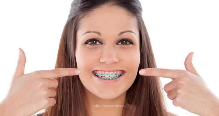 Tipos de ortodoncia: ¿cuál tratamiento necesito?